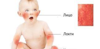 По каким признакам определяют и как лечат детскую чесотку