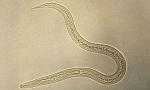 Характеристика и особенности строения круглых червей