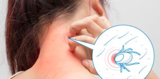Чем помочь пострадавшему при укусе клеща