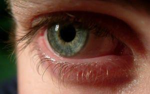 Вопрос №5 Как лечат офтальмомиаз?
