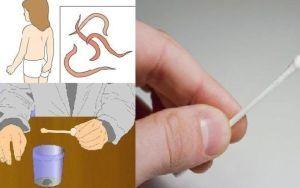 Как правильно сдавать анализы кала на яйца глист