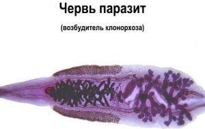 Особенности лечения клонорхоза