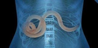 Виды паразитов человека и симптомы заражения