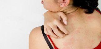 Вопрос №22 – Могут ли глисты вызвать аллергию?