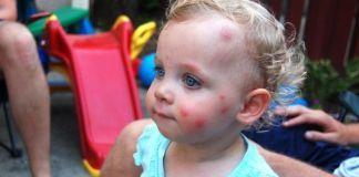 Действия при возникновении аллергии на укусы комаров