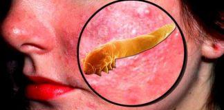 Признаки демодекоза и методы лечения