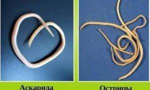 Как отличить остриц от аскарид