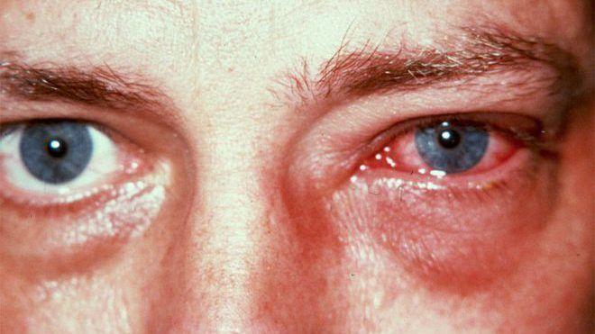 Аллергия при инвазии
