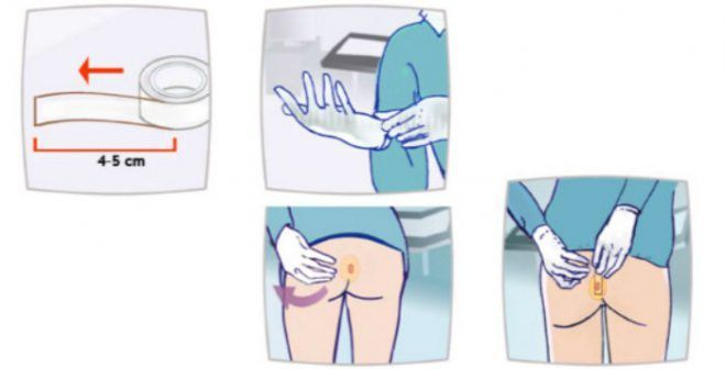 Как берут соскоб на энтеробиоз