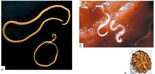 Локализации личинок во внутренних органах