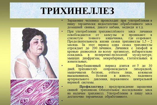 Причины заражения человека трихинеллезом