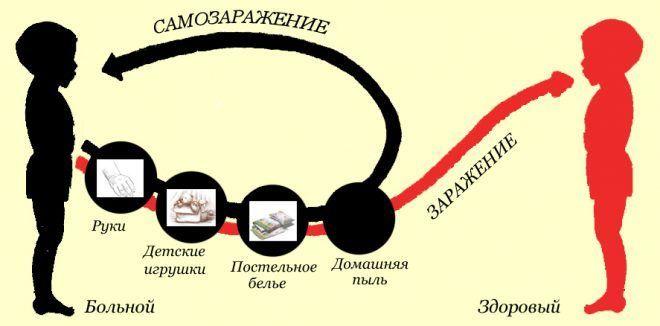 Схема заражения острицами