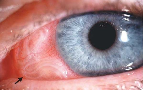 Токсокары поражают глаза