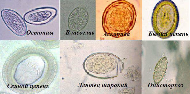 Яйца контактных паразито