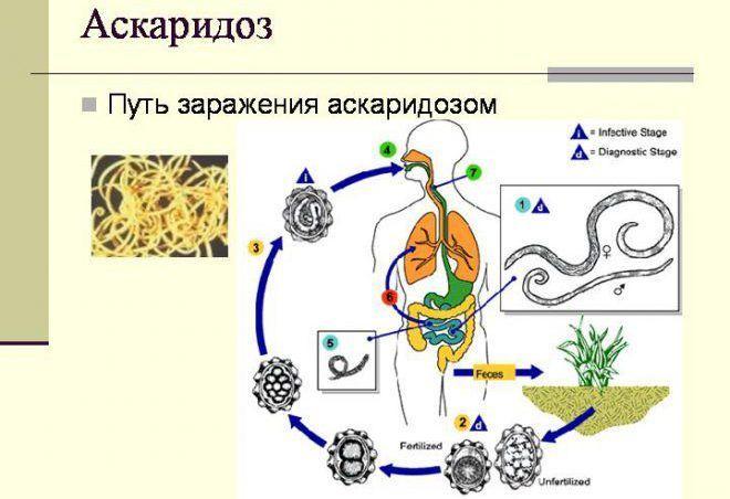 Заражение аскаридозом