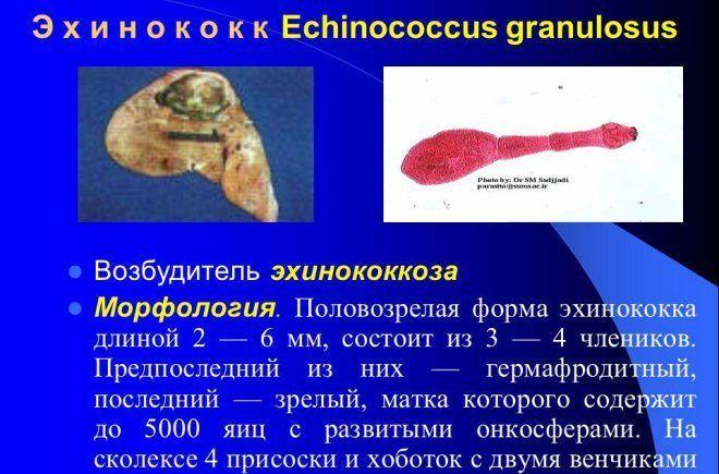 Ehinococcus granulosis в организме