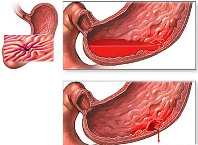 Хронический гастродуоденит в стадии обострения