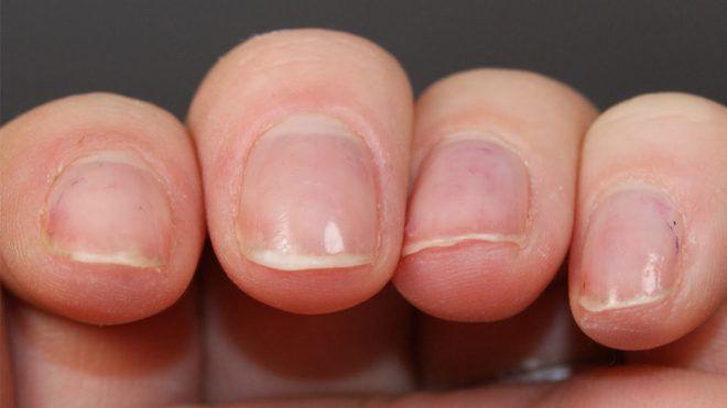Срезание ногтей
