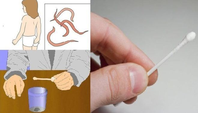 Анализ кала на яйца глис
