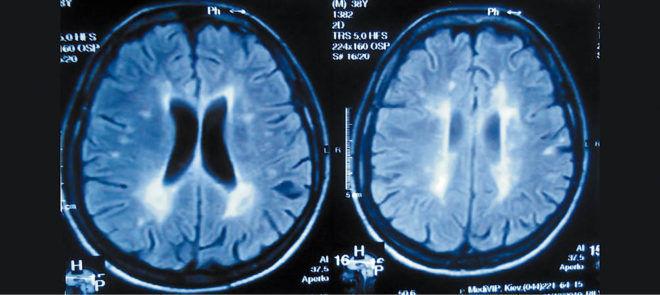 Диффузный лейкоэнцефалит на томограмме мозга