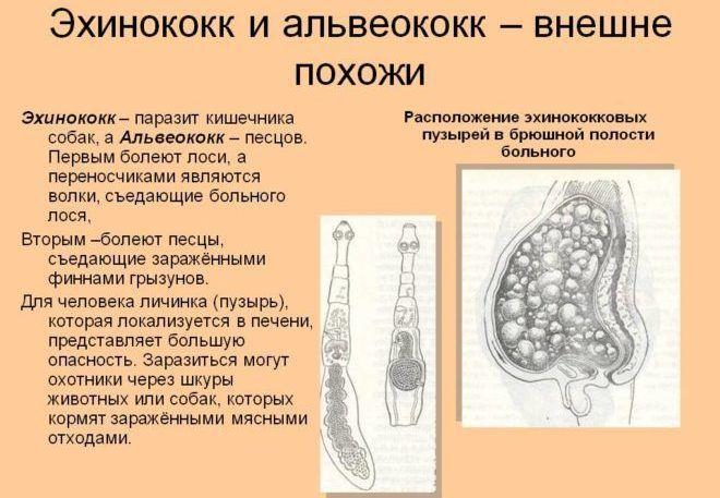 Эхинококк в организме человека