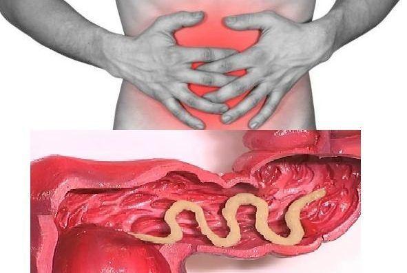 Гельминты симптомы