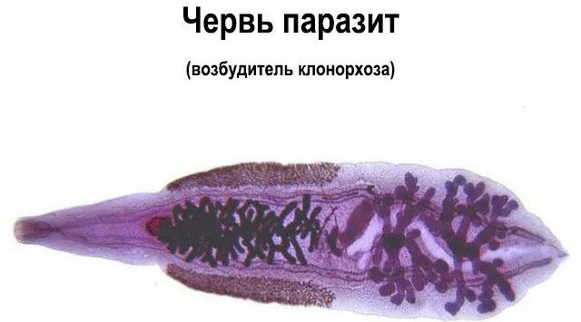 Клонорхоза черьв