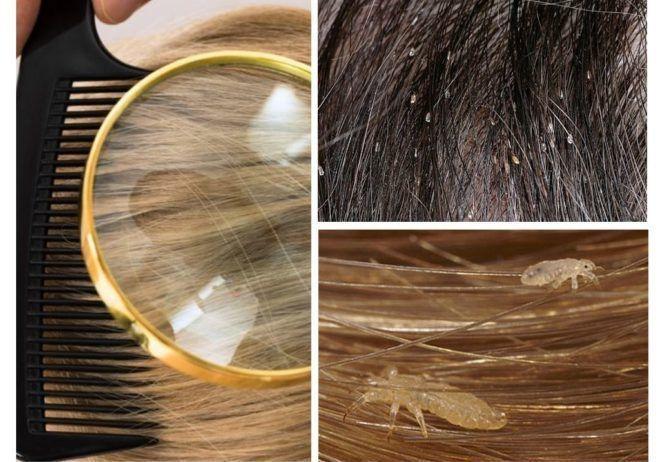 Обработка волос больного