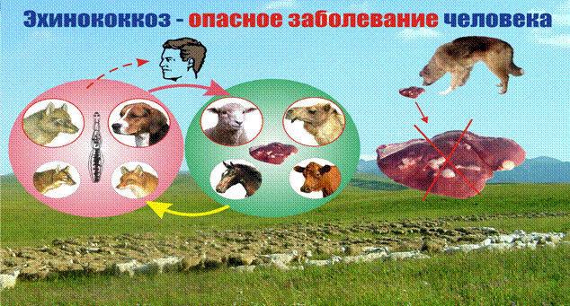 Причины эхинококкоза печени
