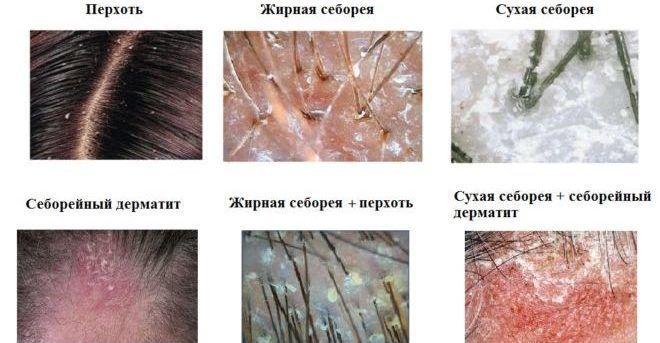 Причины зуда кожного покрова головы