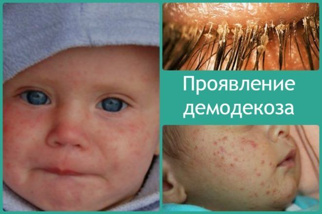 Проявление демодекоза на лице и ресницах