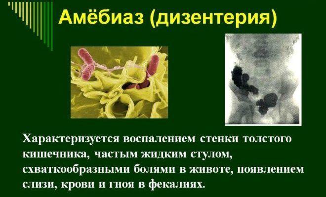Симптомы амебиаза