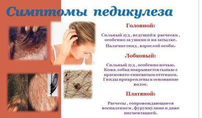 Симптомы педикулеза