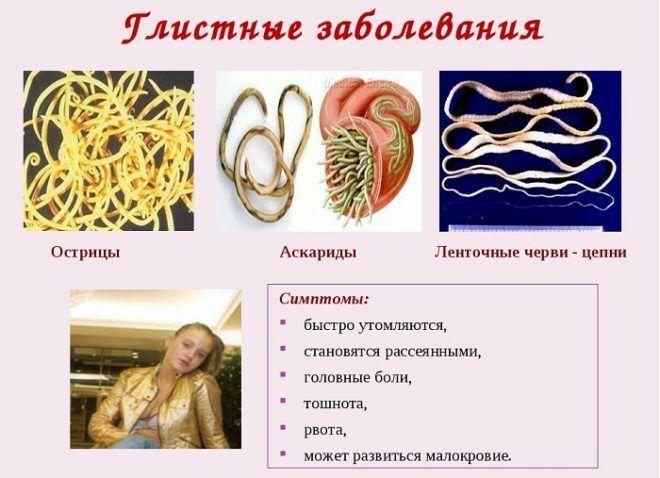 Симптомы заражения глистами