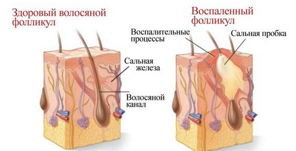 Сухость эпидермиса головы