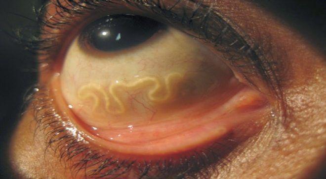 Цистицеркоз глаза