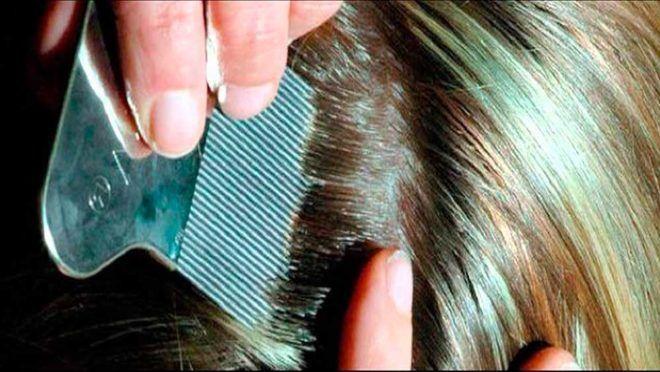 Вычесывание волос от гнид