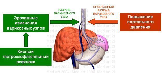 Кровотечение пищевода