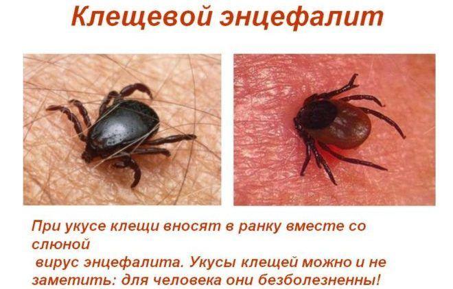 Клещевой энцефалит у человека