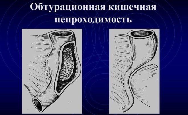 Обтурационной кишечной непроходимости