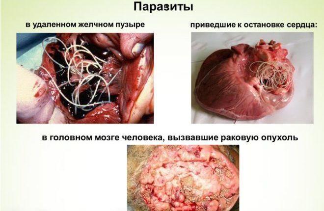 Паразиты разрушают внутренние органы