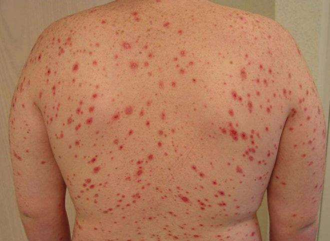 Пятнистая лихорадка - одно из заболеваний, что переносят клещи