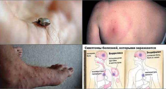Болезни укус клеща