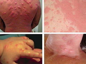 Алергия на укусы клопов